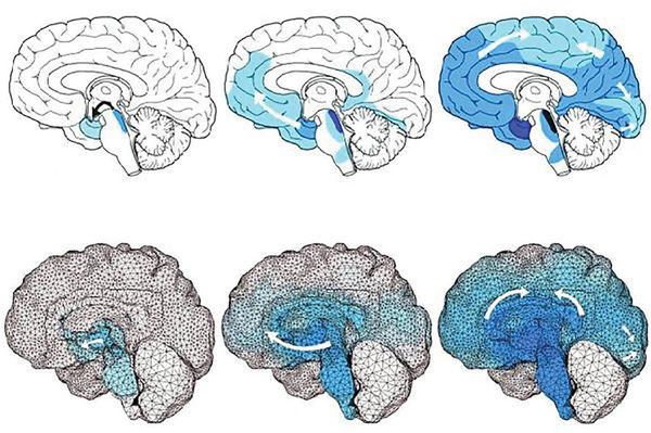 شبیهسازی ابتلا به آلزایمر با مدل رایانهای