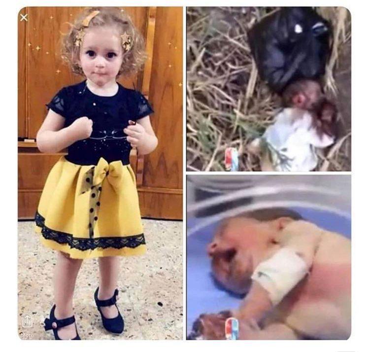 سرنوشت نوزادی که دستانش را موش جویده بود + عکس
