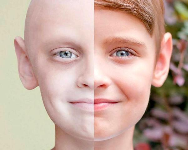 سرطان ؛ دوراهی بین مرگ و پیشگیری